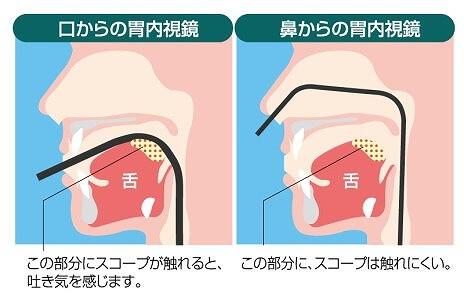 経口・経鼻のお好きな方をお選びいただけます